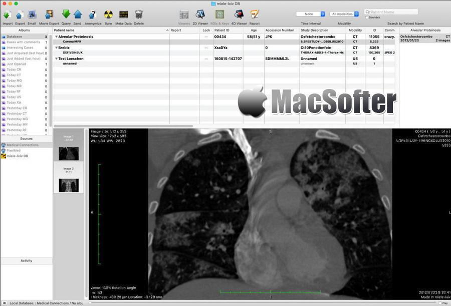 [Mac] Miele-LXIV : 医学数字成像和通信DICOM工作站和查看器