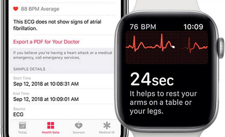 新加坡和加拿大Apple Watch支持ECG心电图