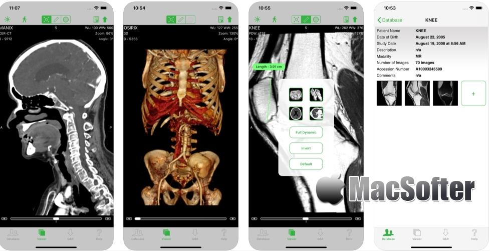 [iPhone/iPad限免] OsiriX HD : 医学DICOM图像查看工具
